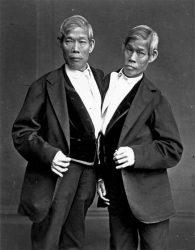 Los gemelos siameses Chang y Eng